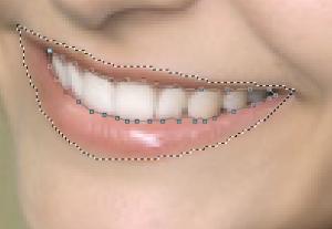 Обводка зубов