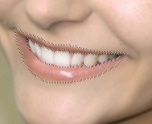Муравьи. Обводка зубов